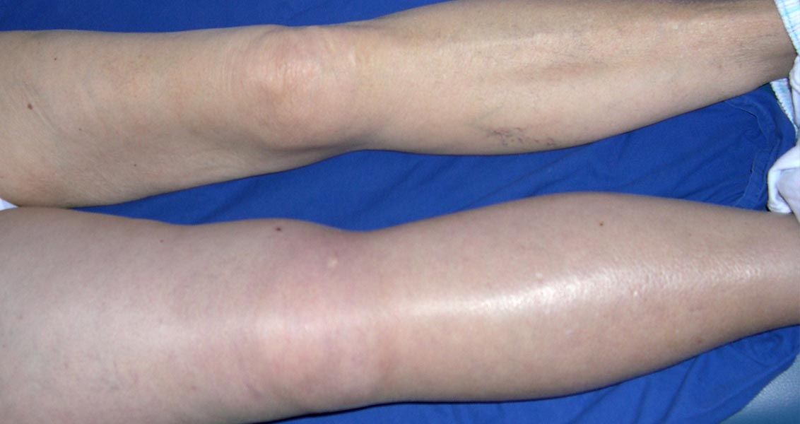 case study 8 dvt winningham History 34 year old female two day history of ecchymoses, petechiae, and hematuria she had noted headaches, nausea, and increasing dysphoria over the past week.