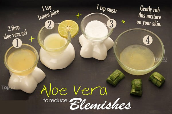 Blemishes-Aloe-Vera-gel-lemon-juice-sugar-600x400