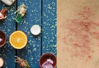 Alternative Therapies Eczema